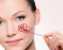 Корекція судинної сітки обличчя