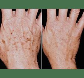 Фотоомолодження рук