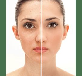 Фотоомолодження обличчя