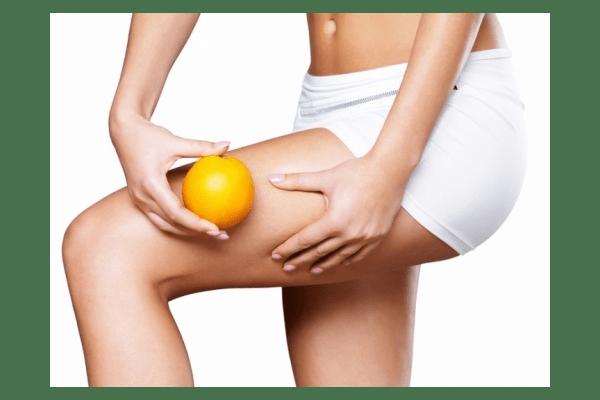 Антицелюлітний масаж - NaVolyni.com